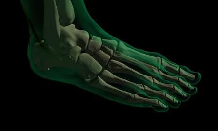 X-foot1